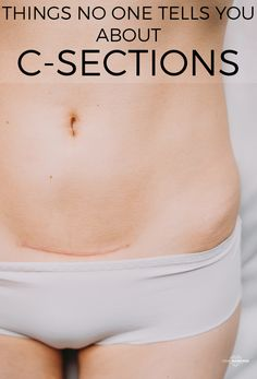 11 Things No One Tells You About C-Sections