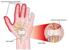 Exercice pour les mains avec le syndrome du canal carpien Si vous souffrez du syndrome, ces exercices vous aideront à conserver la flexibilité des doigts