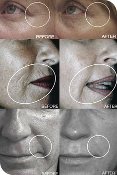 Collagen Induction Therapy. Amazing Results! Bella MedSpa 413-562-3552