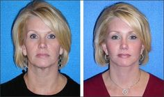 A facelift surgery can give you a more  youthful appearance by reducing saggy skin and wrinkles.