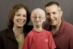 Link2....Funeral held for Mass. teen who had aging disorder