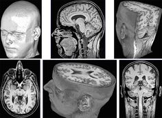 T1-weighted 3D FLASH MRI of the human brain at 0.8 mm isotropic resolution: surface reconstructions and cross-sectional images. http://www.biomednmr.mpg.de/index.php?option=com_content=section=6=38