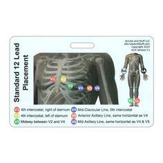 EKG 12 Lead Placement Horizontal Badge Card