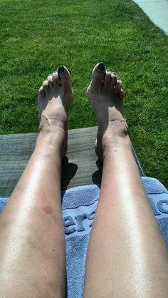 Allergische reactie op mijn been