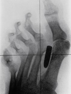 Most bizarre X-rays in the history of medicine (20 pictures) | Historical X-ray of the foot soldiers of the Boer War (1899-1902) with a gunshot wound. The bullet stuck in the metatarsal bones between the big and second toes.