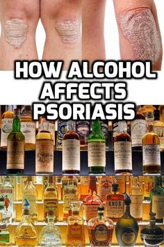 Psoriasis and Alcohol- Next time you are up for the weekend party, show some love towards your skin and don't go beyond a few drinks or just a bottle of beer :-) #Psoriasisalcohol #Psoriasisbeer #Psoriasiswine