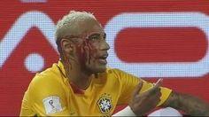 ব্রাজিলের জন্যে রক্ত ঝরাল নেইমার  | Neymar Sacrifice her Blood for Brazil