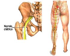 Seus principais ramos ciático e nervo
