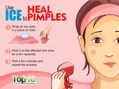 Fastest Way To Dry Up A Pimple