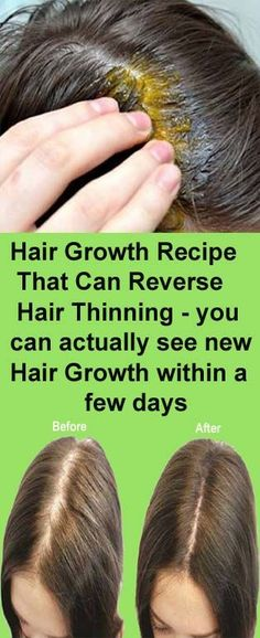Beauty Discover Ultimate Hair Growth Recipe – That Can Reverse Hair Thinning in Short Time ! – Get Ideas Ultimate Hair Growth Recipe – That Can Reverse Hair Thinning in Short Time ! – Get Ideas Natural Hair Loss Treatment, Natural Hair Care, Thinning Hair Treatment, Natural Shampoo, Belleza Diy, Oil For Hair Loss, Normal Hair Loss, New Hair Growth, Growth Oil