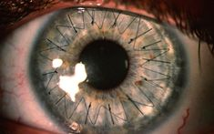 Stitches in Your Eye...the result of a corneal transplant