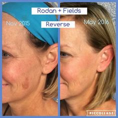 "SUSAN...I LOVE this for you...thanks for sharing your personal results!!  ****** ""Spot Removal? Nope, this before and after is a result of Rodan + Fields Multi-med Therapy. The ""spot"" that is now nearly invisible appeared on my face in 1995 when I was pregnant. The spot has grown and gotten darker over the years. I previously tried laser treatment, and oodles and oodles of different lightening creams with very little satisfaction. Mind you -- this took consistent use and"