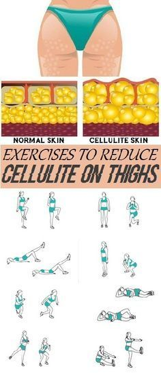 Effective Exercises to Reduce Cellulite on Thighs..
