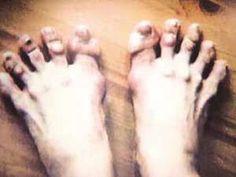 Ballet dancers feet Or mine , trying to reach my fitbit goals! Dancers Feet, Ballet Dancers, Ballerina Feet, Weird But True, Human Oddities, Ballet Heels, Unusual Things, Lets Dance, Weird World