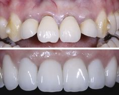 Before and After: Although the patient had recently completed Invisalign treatment, her four front teeth with existing crowns were still too far forward in her mouth. The two front teeth were extracted and replaced with implants, requiring bone grafting (adding necessary bone). Six months later, all-ceramic crowns were installed on the four front teeth, and porcelain laminate veneers were placed on the canines. www.olivadds.com