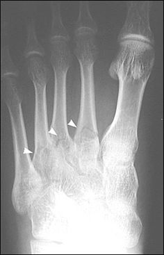 593972fa65eb Diagnosis and Management of Metatarsal Fractures - - American Family  Physician