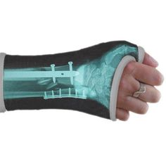 xray cast art - company can take the X-ray of your break and send an appliqué of sorts for you to apply on your cast! Broken Wrist, Broken Foot, I'm Broken, Ankle Cast, Cast Covers Arm, Arm Cast, Cast Art, Modern Tattoos, Skateboard Design
