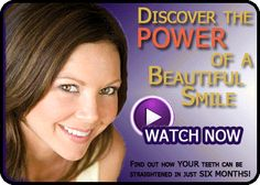 Six Month Braces: Discover the Power of a Beautiful Smile