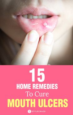 Top 15 Home Remedies To Cure Mouth Ulcers: Irrespective of what the cause is, an ulcer in the mouth can be very annoying. If you are looking for easy and simple home remedies to get rid of mouth ulcers, keep reading! #Remedies #HomeRemedies #MouthUlcers