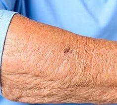 Comment réparer la peau âgée (faites ceci tous les jours)