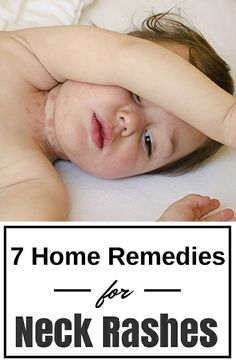 7 Simple Home-Care Tips To Treat Neck Rashes In Your Baby