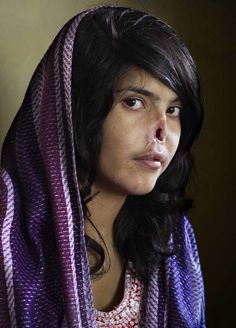 2010: Bibi Aisha, an 18-year-old woman from Oruzgan province in Afghanistan, fled back to her family home from her husband's house, complaining of violent treatment. The Taliban arrived one night, demanding Bibi be handed over to face justice. After a Taliban commander pronounced his verdict, Bibi's brother-in-law held her down and her husband sliced off her ears and then cut off her nose. Bibi was abandoned, but later rescued by aid workers and the U.S. military. (By Jodi Bieber)