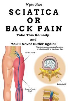 If You Have Sciatica or Back Pain, Take This Remedy and You'll Never Suffer Again!