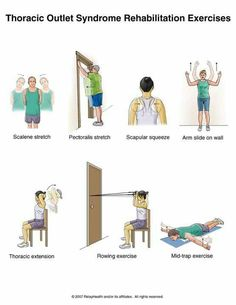 Thoracic outlet syndrome ex