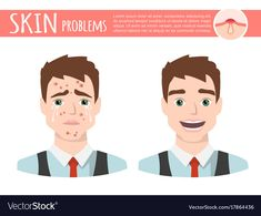 Acne treatment before after facial cleansing foam vector image on VectorStock Cartoon Man, Facial Cleansing, Acne Treatment, Lorem Ipsum, Adobe Illustrator, Vector Free, Greece, Skin Care, Illustration