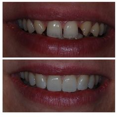 Would you like to have a beautiful smile just after two visits? #veneers #nyc #cosmeticdentistry #drghalili #beautifulsmile by 55th_ave_dental Our Cosmetic Dentistry Page: http://www.myimagedental.com/services/cosmetic-dentistry/ Google My Business: https://plus.google.com/ImageDentalStockton/about Our Yelp Page: http://www.yelp.com/biz/image-dental-stockton-3 Our Facebook Page: https://www.facebook.com/MyImageDental Image Dental 3453 Brookside Road Suite A Stockton CA 95219 (209) 955-1500…