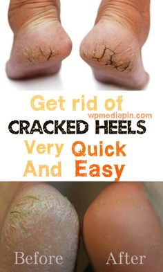 Get rid of cracked heels very quick and easy