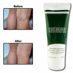 Vein Eraser Cream by Vein Eraser Cream. $29.89. In just weeks you could see your spider veins fade away. Cosmetic cream reduces the appearance of thread veins, broken capillaries, and burst blood vessels. Powerful and effective formula is gentle enough to use on face, arms, legs, and back. Contains a blend of natural ingredients like rosehip oil, gingko biloba and other flower extracts.