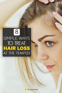 8 Simple Ways To Treat Hair Loss At The Temples – Thinning hair can be annoyingly unpleasant, especially when it starts at your temples. Worry not, here we give you simple ways to treat temple hair loss. What Causes Hair Loss, Hair Loss Cure, Stop Hair Loss, Hair Loss Remedies, Prevent Hair Loss, Causes Of Hair Fall, Argan Oil For Hair Loss, Best Hair Loss Shampoo, Biotin For Hair Loss
