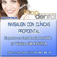 Precio invisalign Barcelona   Ortodoncia invisible sin brackets