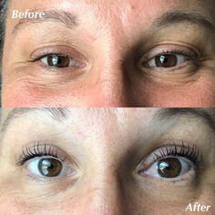 Before and after lash lift Eyelashes, Eyebrows, Botox Before And After, Eyelash Lift, Rhinoplasty, Videos, Beauty Hacks, Eyes, Makeup