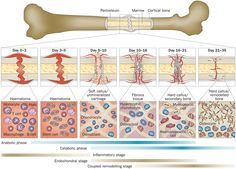The Role of Chondrocytes in Fracture Healing.@ http://www.omicsgroup.org/journals/the-role-of-chondrocytes-in-fracture-healing-2165-7939-1000328.php?aid=78245