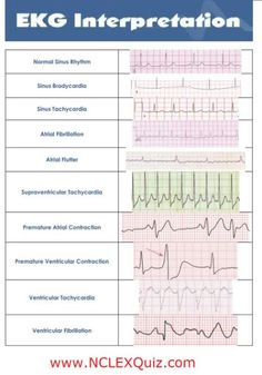 1000+ images about ACLS on Pinterest