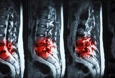 Your spine is made up of a column of bones stacked on top of each other. Discs provide cushioning between each of these bones. Sometimes discs may bulge -- move out of place -- and put pressure on nerves that exit your spine. Symptoms are specific to the level of the bulge. An L4/5 bulging disc puts pressure on your L5 nerve -- one of the most...