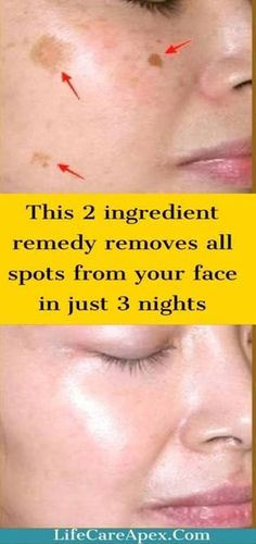 This Remedy Removes All Spots From Your Face In Just 3 Nights! This article we tend to area unit planning to offer you recipes for a natural mask which can assist you to take awaythe black spots, dark spots, acne scars, skin pigmentation and blemishes. Brown Spots On Skin, Skin Spots, Dark Spots, Black Spots On Face, Beauty Care, Beauty Skin, Health And Beauty, Beauty Tips, Beauty Hacks