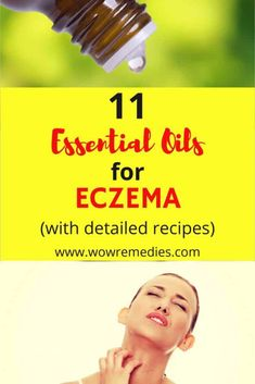 Is your skin itchy and inflamed? Check out these 11 best essential oils for eczema that can relieve and soothe your itchy skin.