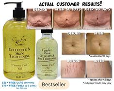 Cellulite Skin Tightening Tummy Tuck Oil for Stretch Marks, Cellulite & Skin Tightening! FOR THE BEST RESULTS POSSIBLE (ESPECIALLY CELLULITE AREAS) EXFOLIATE THE AREAS YOU WILL BE APPLYING CREAM OR OIL TO IN THE SHOWER WHEN SHOWERING! Apply TWICE daily and rub in well for best results. If using Beauty Care, Beauty Skin, Beauty Tips, Beauty Hacks, Daily Beauty, Beauty Ideas, Beauty Secrets, Beauty Makeup, Skin Tightening