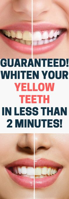 GUARANTEED! WHITEN YOUR YELLOW TEETH IN LESS THAN 2 MINUTES.!