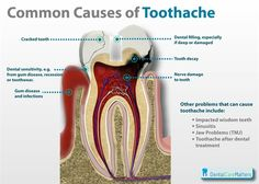 10 Common Causes of Toothache 1.	Cracked tooth 2.	Dental sensitivity from gum disease, recession or tooth wear 3.	Gum disease and infections 4.	Dental filling, especially if deep or damaged 5.	Tooth decay 6.	Nerve damage to teeth 7.	Impacted wisdom teeth 8.	Sinusitis 9.	Jaw problems (TMJ) 10.	Toothache after dental treatment. Dentaltown