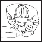 How to do infant CPR: 1. Shout and tap 2. Give 30 compressions 3. Open the airway 4. Give 2 gentle breaths