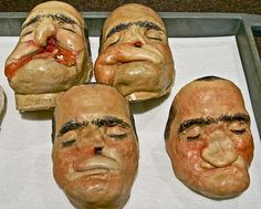 Plaster models    World War II facial reconstruction models.