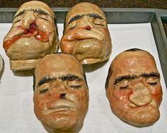World War II facial reconstruction models.