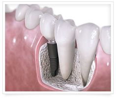 Oral & Facial Surgery Institute offers full dental implants, wisdom teeth & facial surgery in the communities of St. George , Cedar City, Delta & Hurricane in Southern Utah, Mesquite, NV and Page, AZ.