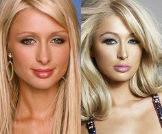 Paris Hilton Plastic Surgery