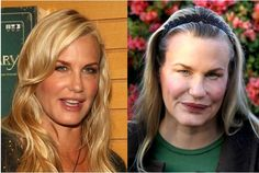 Oh no, not Darryl Hannah! Plastic surgery, botox, lip injections, etc. -- stop the madness!