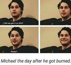 He's so cute ^_^ but I'm sorry he got burned :(
